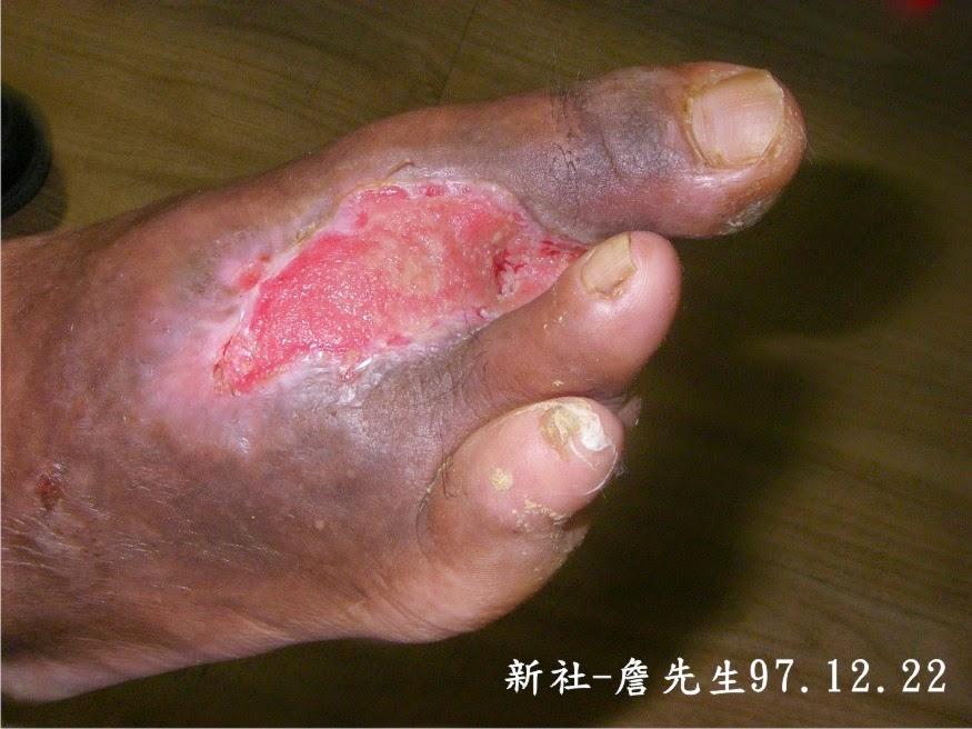 石岡水壩惠民: (026) 新社-詹先生-務農腳底刺傷引起潰爛
